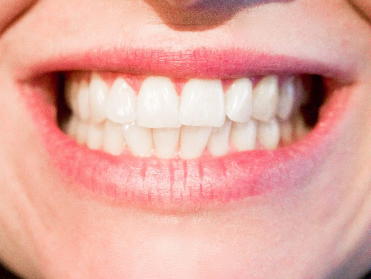 Aktualna technologia wykorzystywana w salonach stomatologii estetycznej zdoła spowodować, że odzyskamy śliczny uśmieszek.